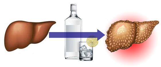 Влияние алкоголя на содержание холестерина в крови