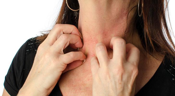 Почему возникает аллергия на водку