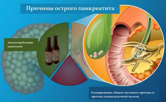Алкоголь при заболеваниях поджелудочной железы